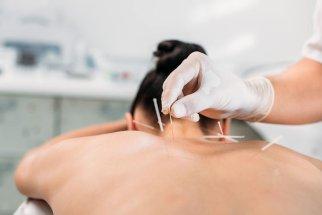 agopuntura collo
